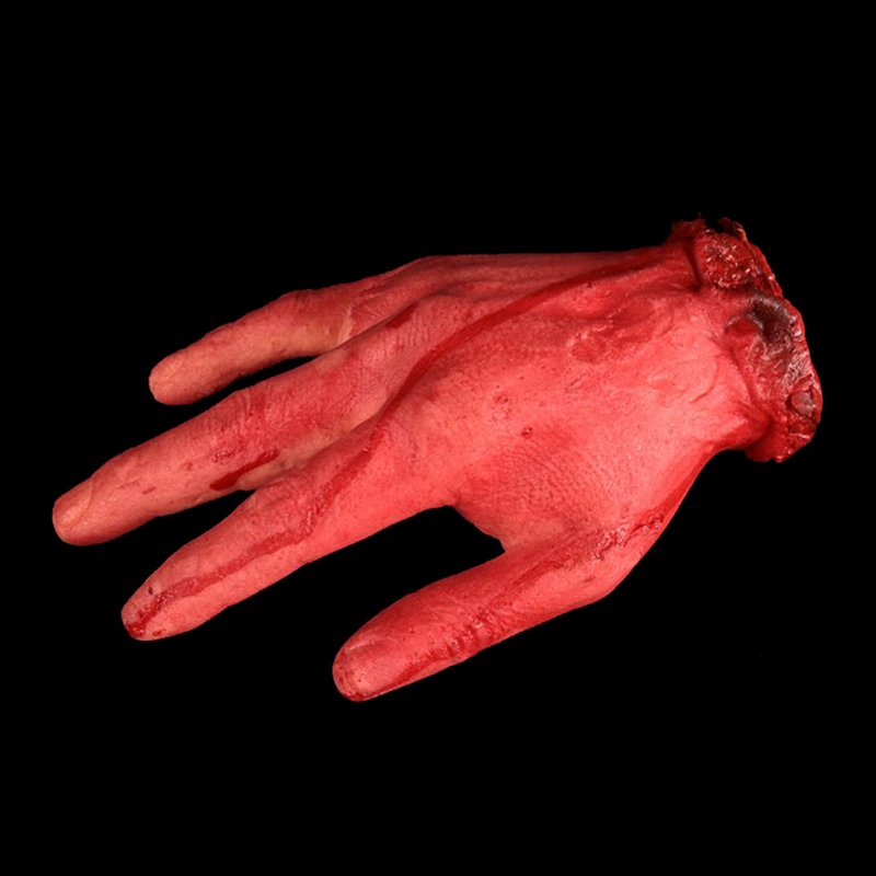 severed hand case In cases where the injury is further into the hand or arm when special efforts are made to reattach a severed finger with severed fingers.