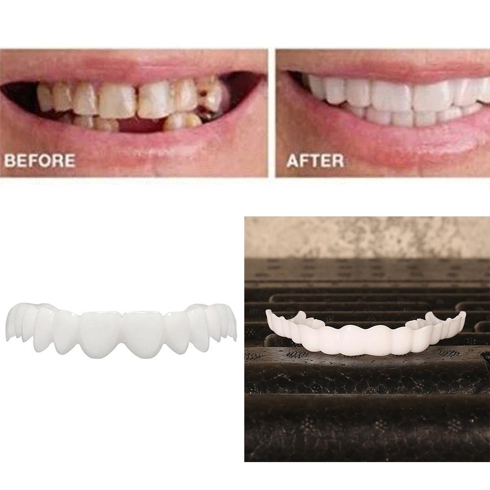 Details about Fit Flex Cosmetic Dentistry Denture False Teeth Top Veneer  TYPE