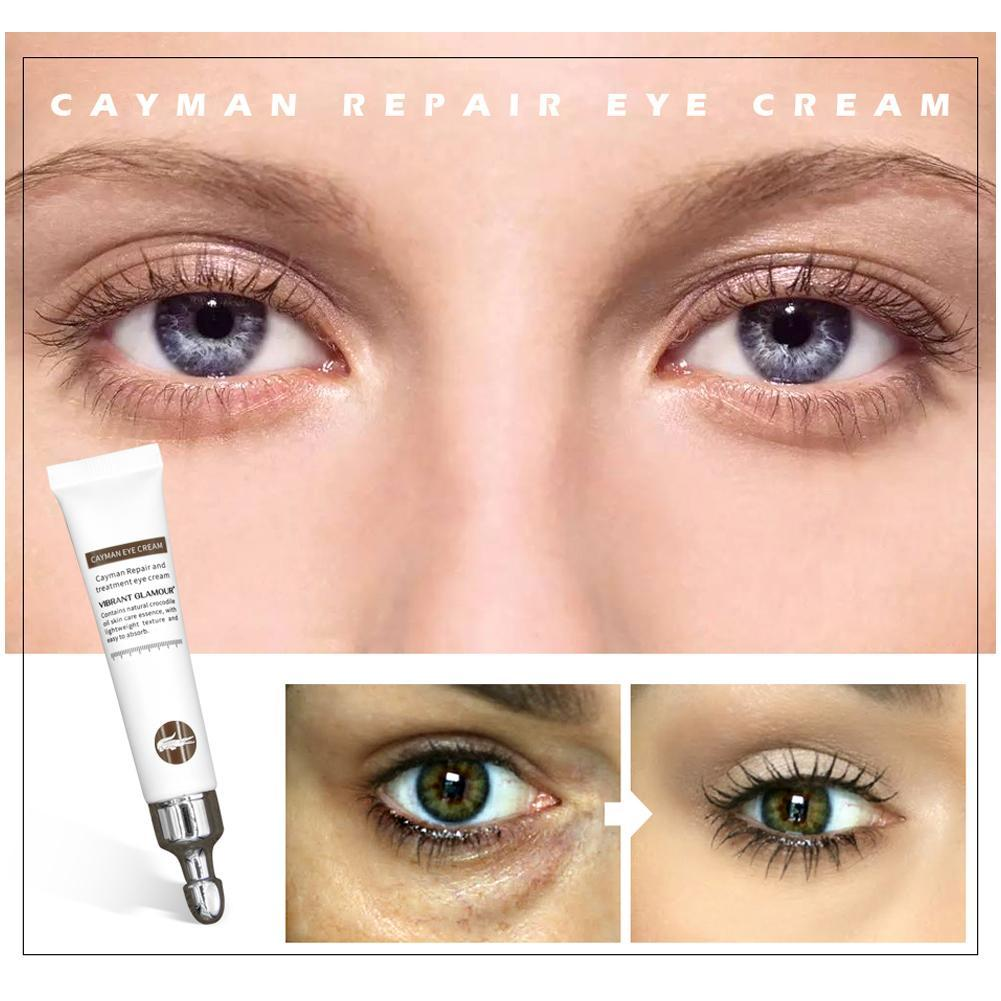 Details about 20ml Wrinkles Eye Cream Hyaluronic Acid Essence Eye Serum  Remove Dark Circles