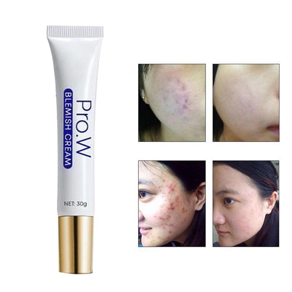 Pro W Blemish Cream Anti Acne Scar Cream 30g 5211211222111 Ebay